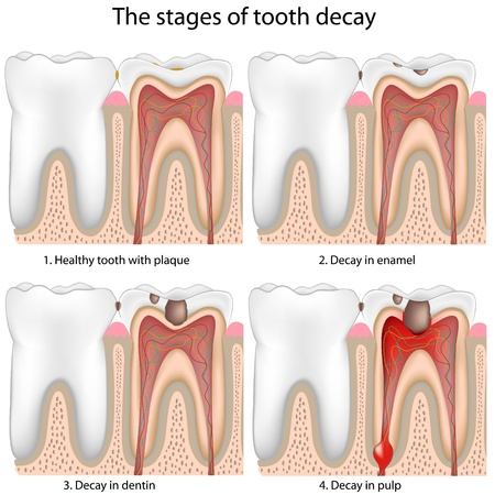 dental caries: Tooth decay,eps8 Illustration