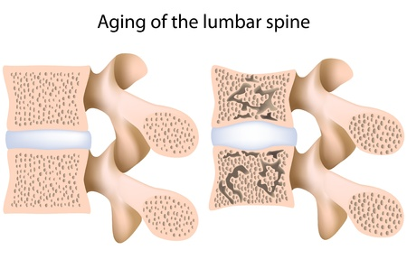degeneration: Lumbar spine osteoporosis, eps8