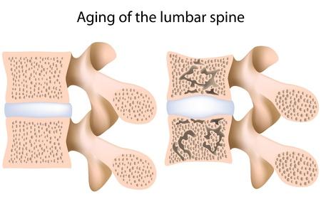 osteoporosis: Osteoporosis de la columna lumbar, eps8 Vectores
