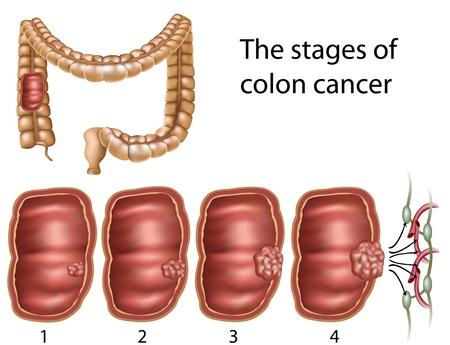 Darmkanker, eps8 Vector Illustratie