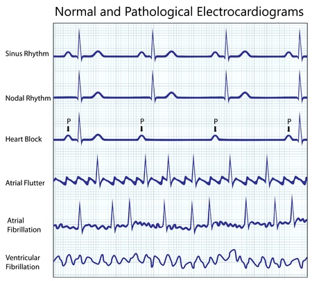 ekg: Normal and diseased ecg collection, eps8