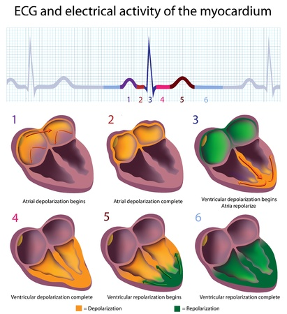 heart attack: Connection between ECG and electrical activity of the heart, eps8 Illustration