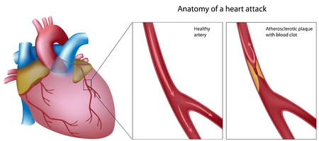 stenosis: Anatomy of heart attack, eps8 Illustration