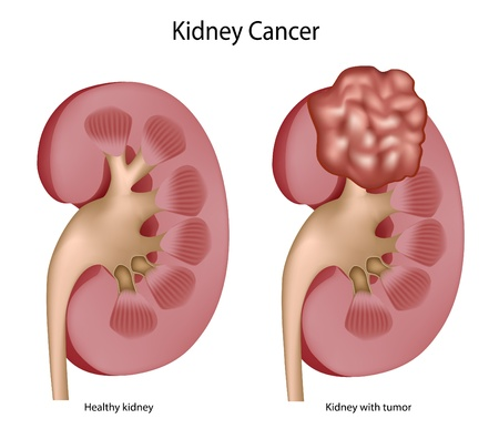 cancer cells: Kidney cancer, eps8