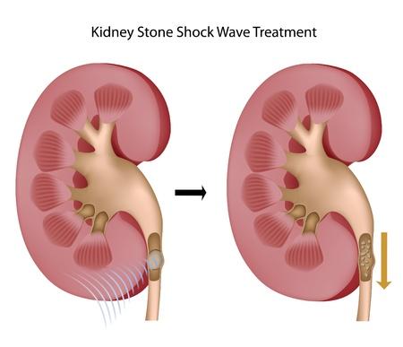 Behandlung von Nierensteinen mit Schockwelle, eps8 Stockfoto - 9549403
