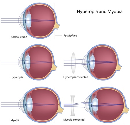 Myopia and hyperopia, eps8 Vector
