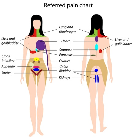 zenuwachtig: Referred pain grafiek, EPS8 Stock Illustratie