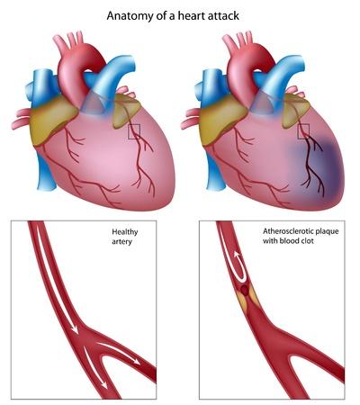 ataque cardiaco: Ataque al coraz�n, eps8