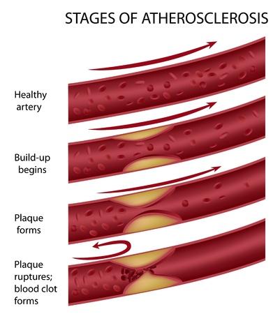 enfermedades del corazon: Etapas de la ateroesclerosis Vectores