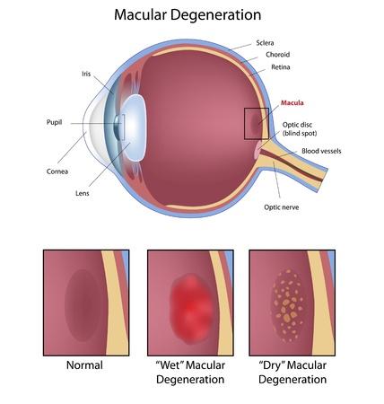 eye anatomy: Eye macular degeneration, eps8