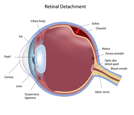 Eye retinal detachment, eps8 Vector