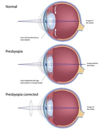 cornea: Patologia oculare presbiopia, eps8 Vettoriali