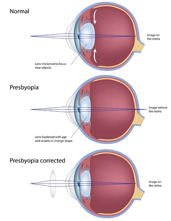 anatomy body: Presbyopia eye condition, eps8