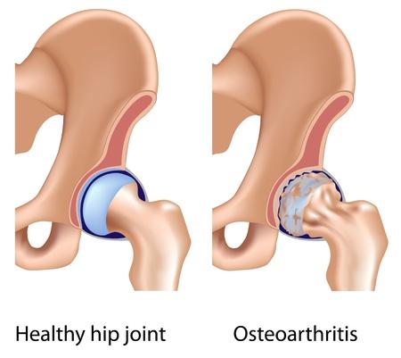 La osteoartritis de la articulación de la cadera, eps8 Ilustración de vector