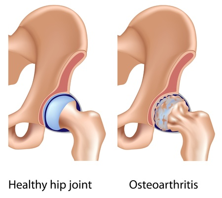 erosion: Osteoarthritis of hip joint, eps8 Illustration