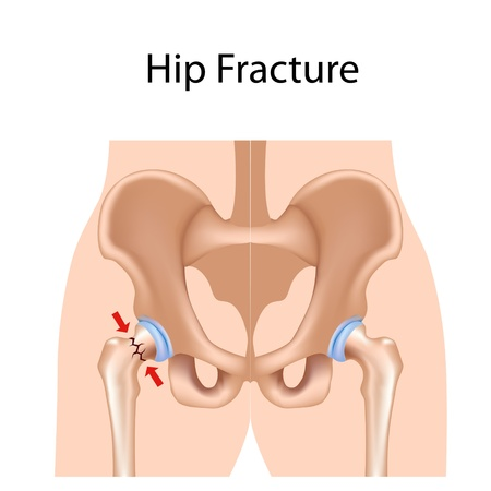 bone fracture: Hip fracture, eps8 Illustration