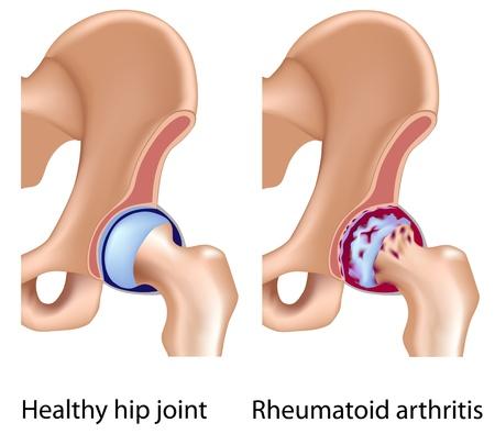 artrite: L'artrite reumatoide dell'articolazione dell'anca, eps8 Vettoriali