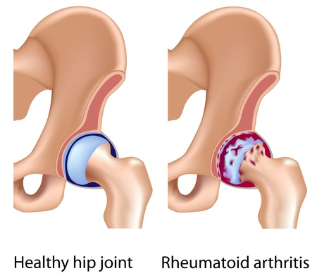 Rheumatoid arthritis of hip joint, eps8 Vector