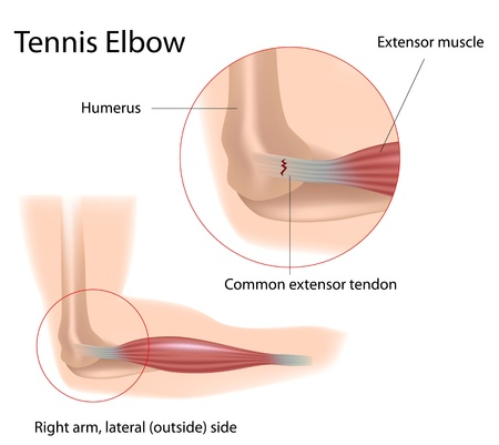 elbows: Tennis elbow, eps8 Illustration