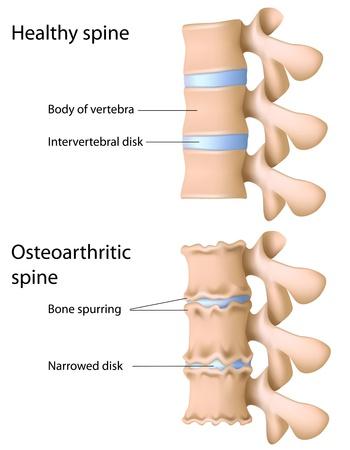 artrosis: Artrosis de la columna vertebral, eps8 Vectores
