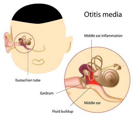 Otitis media, eps8