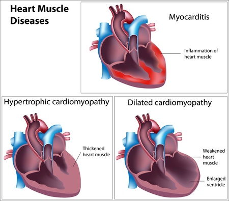Diseases of heart muscle, eps8 Vector
