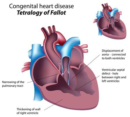 Herzkrankheit: Angeborene Herzfehler: Fallot-Tetralogie, eps8 Illustration