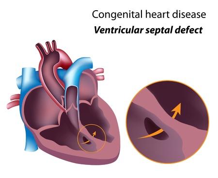Herzkrankheit: Angeborene Herzfehler: Ventrikelseptumdefekt, eps8 Illustration