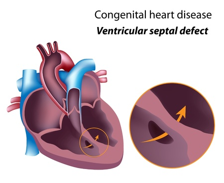 heart attack: Congenital heart disease: ventricular septal defect, eps8