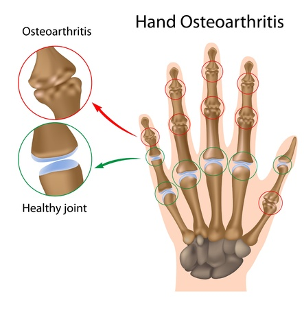 Osteoarthritis of the hand, eps8 Vector
