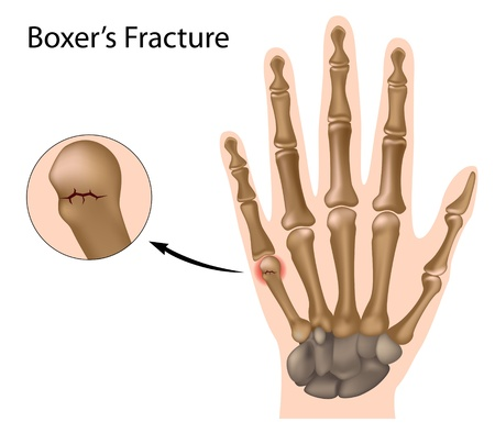 carpal: Boxer fracture, eps8 Illustration