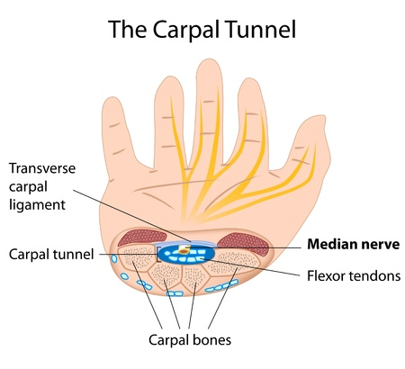 carpal tunnel syndrome: Sindrome del tunnel carpale, eps8 Vettoriali