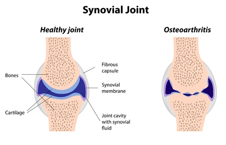 epaule douleur: Articulation synoviale normale et l'arthrite, eps8 Illustration
