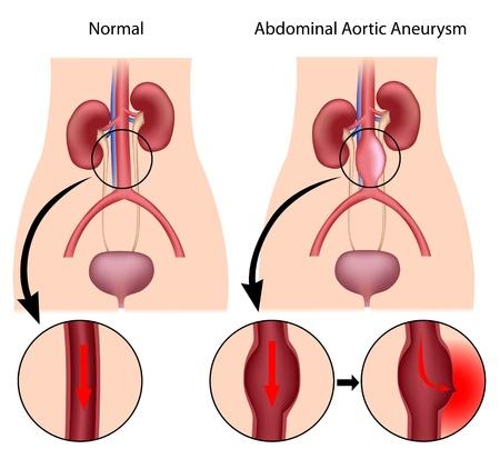 vasos sanguineos: Un aneurisma aórtico abdominal