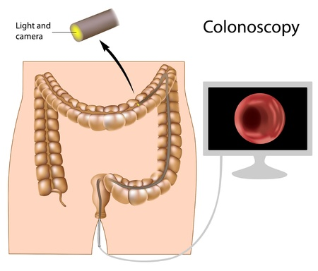 Colonoscopy procedure  Vector