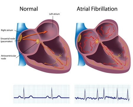 heart monitor: Atrial fibrillation  Illustration