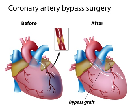 Heart bypass surgery  Illustration