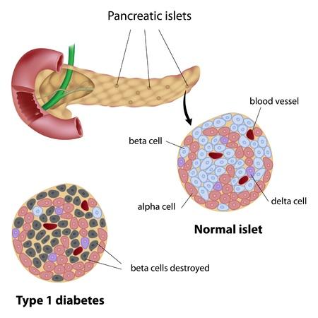 vasos sanguineos: Los islotes pancreáticos normales y diabéticos tipo 1 Vectores