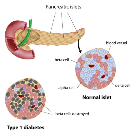 trzustka: Wysp trzustkowych normalne i typu 1 cukrzycy