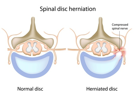 herniated: Spinal disc herniation