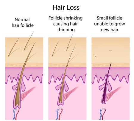 Hair loss process Stock Illustratie
