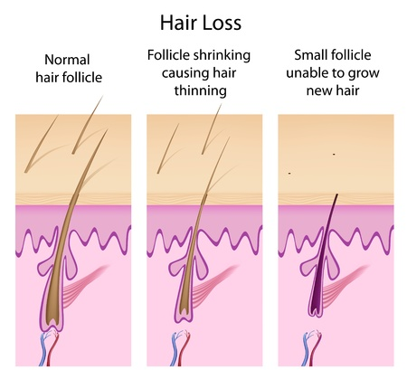 cell growth: Hair loss process Illustration