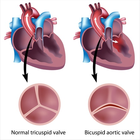 tricuspid valve: heart valve defect