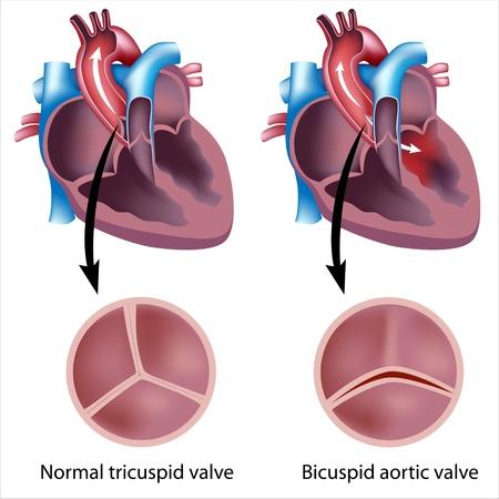 Herzklappen-Defekt Vektorgrafik