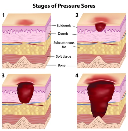 lesions: Stages of pressure sores