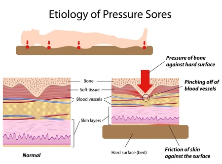 sores: L'eziologia delle lesioni da decubito Vettoriali
