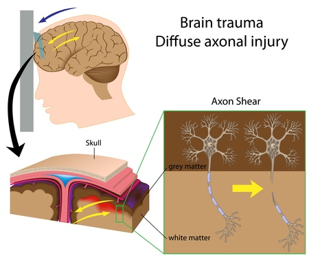 lesions: Brain trauma with axon shear
