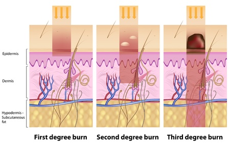 subcutaneous: Skin burns Illustration
