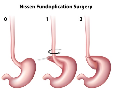 acid reflux: Nissen Fundoplication Surgery