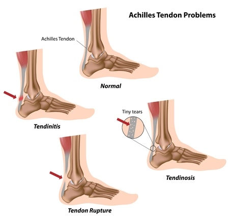 Achilles tendon problems Illustration
